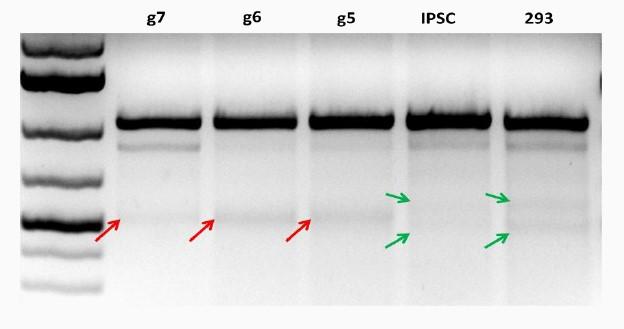 Case Studies 2 Figure 1 - iPSC Disease Modeling