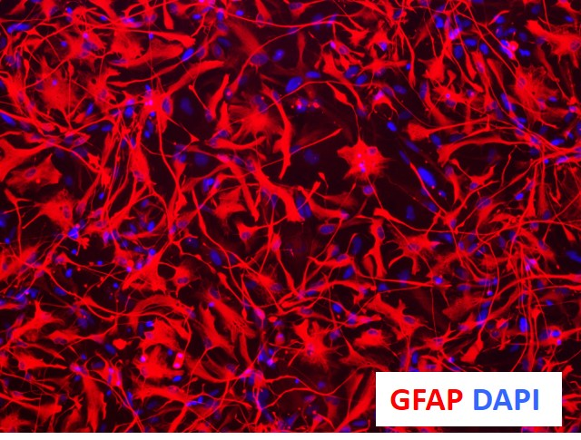 TECHNICAL-Astrocytes-GFAPstaining