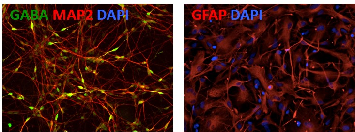 Image 5 - Differentiation of APOE iPSC Lines into Cortical Neurons and Astrocytes