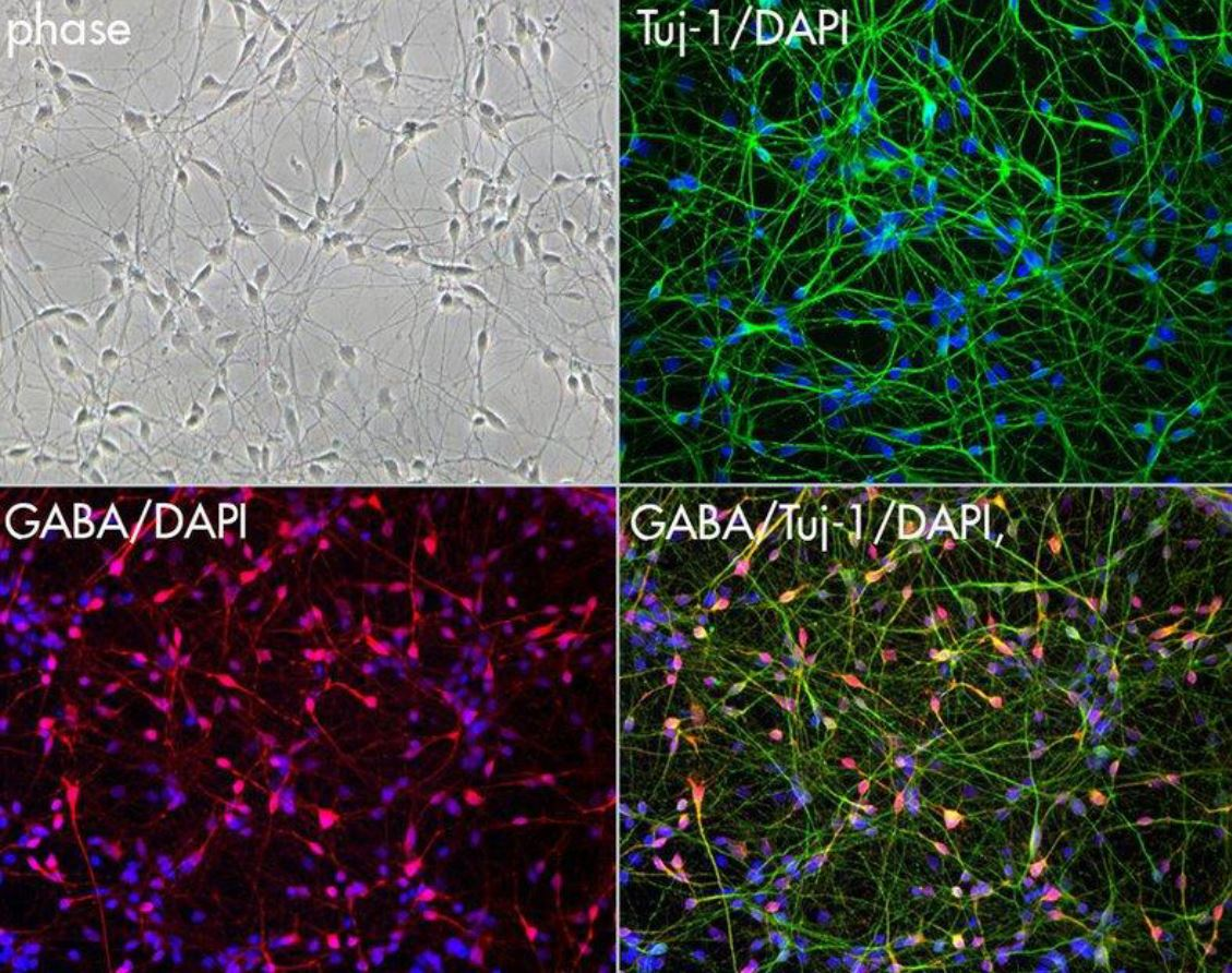 Figure 1 - IPSC-Derived Neurons