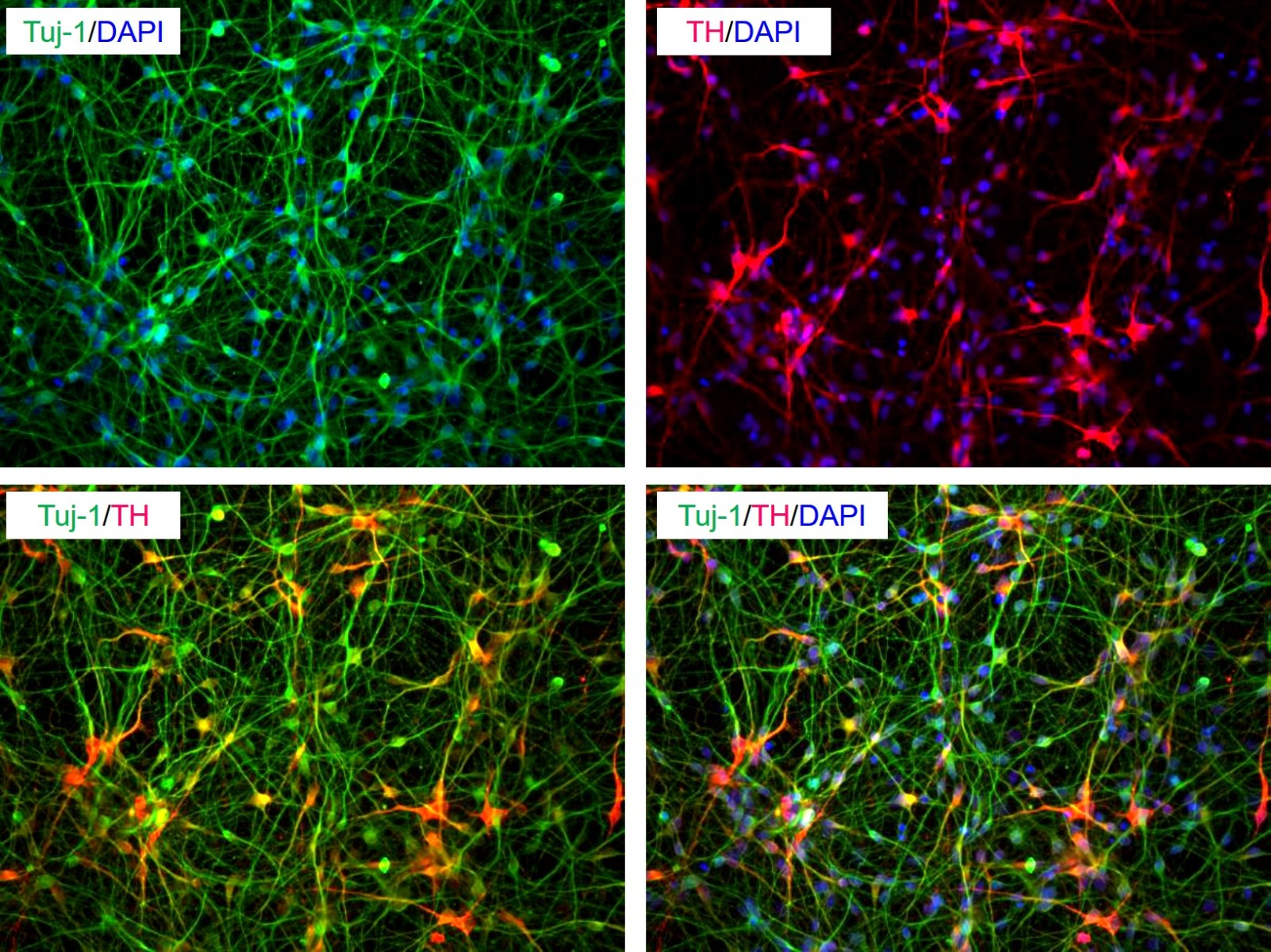 Dopamine neurons differentiated from control iPSC ,ASE-9109