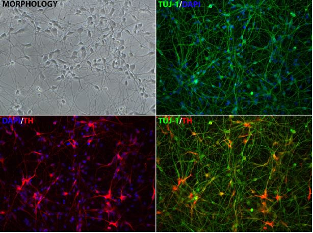 Dopaminergic neurons differentiated - iPSC Neuronal Differentiation