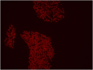 mCherry red image - Knock-in Cell Line- human iPSC line